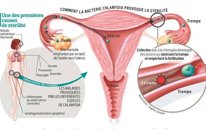 Dépister une infection à Chlamydia - Doctissimo